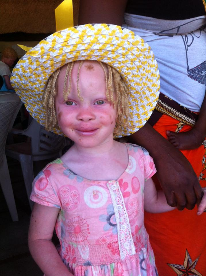 little albino girl from vilanculos